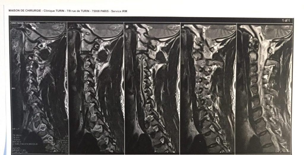 Mes radios des cervicales mettent en évidence un début d'arthorse au cervicales C6/C7 (ostéophytes). Cela provoquait des douleurs de névralgie cervico-brachiale en 2017. Les ostéophytes n'ont pas disparu mais la douleur oui. Il faut donc garder espoir et s'attaquer au problème sous l'angle de la sanré naturelle.