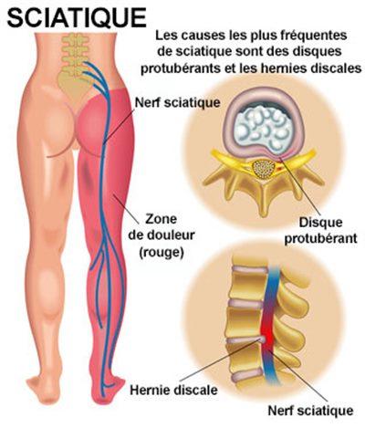 Sciatique. Douleur dans la jambe en cas de pincement des nerfs au niveau des lombaire. Le principe est le même en cas d'arthrose aux cervicales