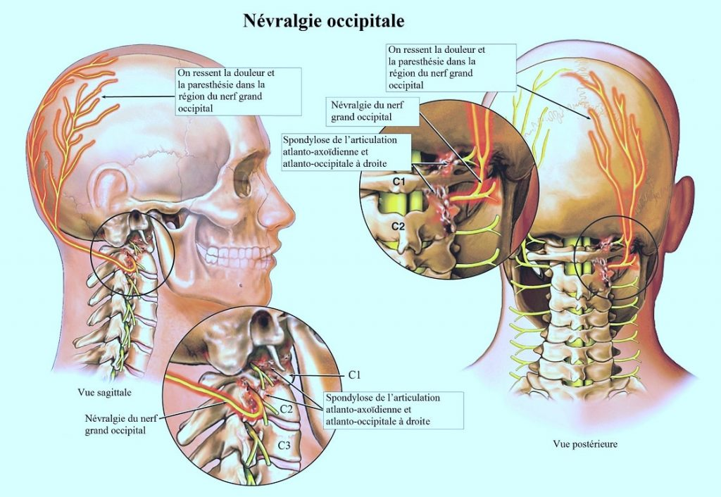 Inflammation des nerfs occipitals donnant des douleurs de mal de crâne en cas d'arthrose cervicale dans cette zone