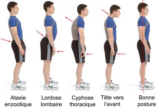 Les mauvaises postures ont des conséquences désatreuses sur le corps, sur le long terme. L'arthrose cervicale est une de ces conséquences