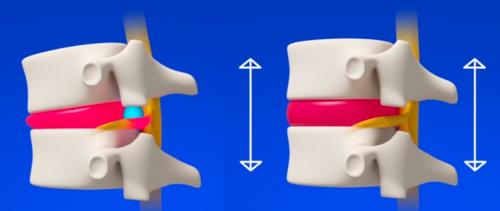 Etirez vos vertèbres et soulagez vos articulations permettra de réduire vos douleurs liées à l'arthrose cervicale